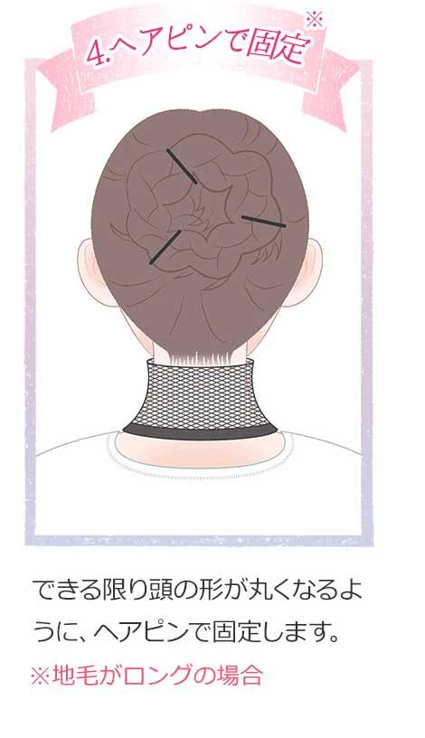 4.ヘアピンで固定 できる限り頭の形が丸くなるようにヘアピンで固定します。※地毛がロングの場合